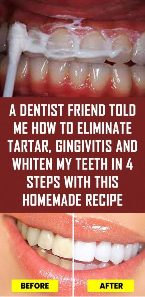 A DENTIST FRIEND TOLD ME HOW TO ELIMINATE TARTAR, GINGIVITIS AND WHITEN MY TEETH…