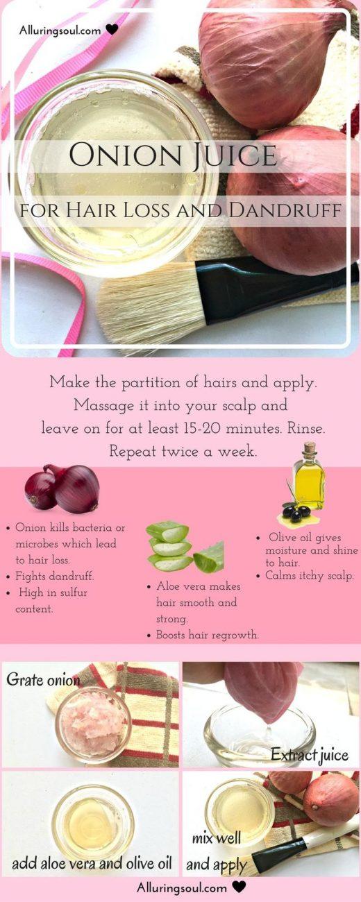 DIY Aloe Vera And Onion Juice For Hair Loss And Dandruff