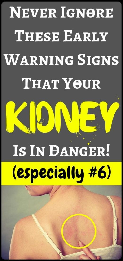 If your kidneys might be in danger, the body will give you these signs….!