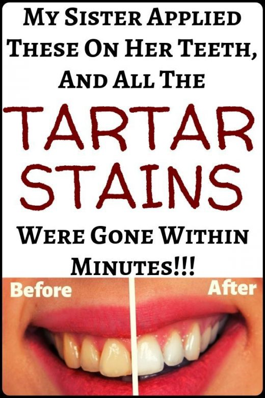 My sister applied these on her teeth and all the tartar stains were removed with…