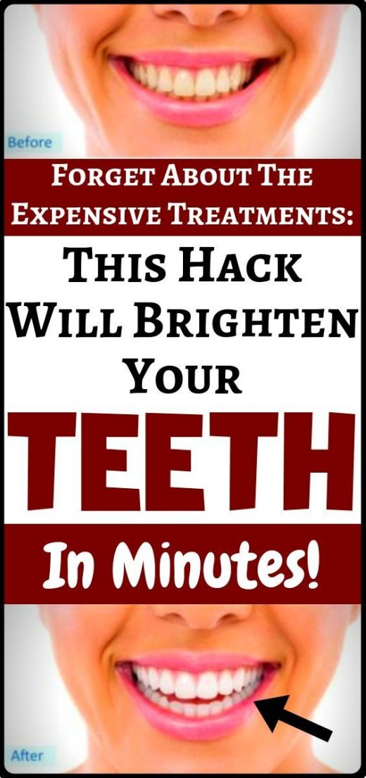 Whiten your teeth naturally and completely organic at home without expensive tre…