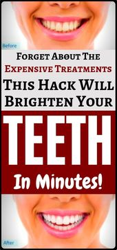 Turn your yellow teeth white with these easy home tricks…!