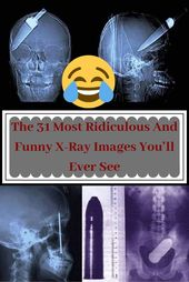 The 31 Most Ridiculous And Funny X-Ray Images You'll Ever See