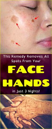 This Treatment Gets rid of Darkish Spots from Your Confront and Palms in Just 3 Evenings  