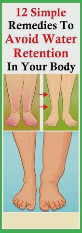 12 Simple Remedies, To Avoid Water Retention, In Your Body